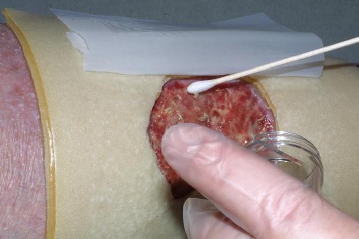 Levende fluelarver får sår til å gro